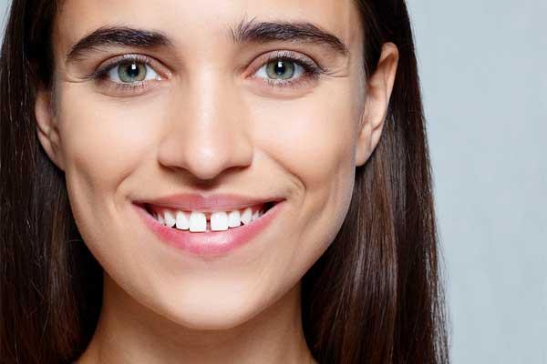 علت فاصله بین دندان های جلو