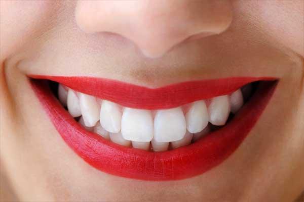 بیماری های لثه با ونیر دندان