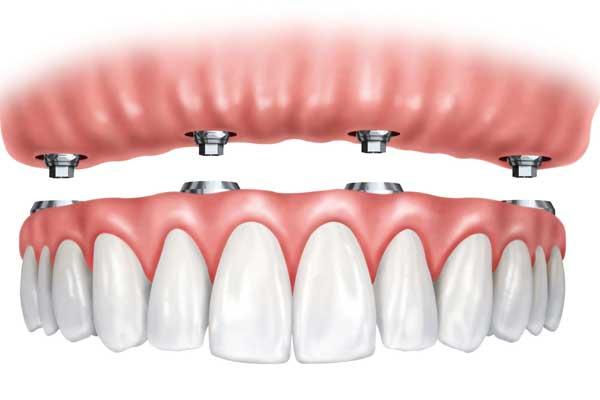 دندان های مصنوعی ایمپلنت شده