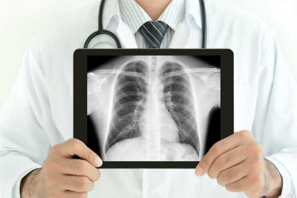 رادیولوژی قلب قبل از عمل