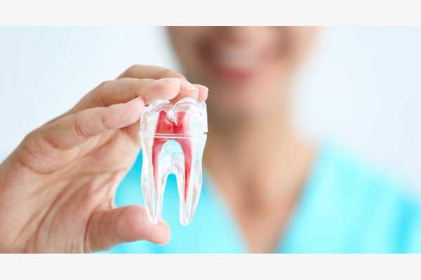 راه های عصب کشی دندان