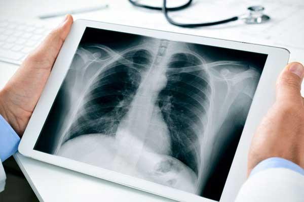 مزایا و عوارض رادیولوژی