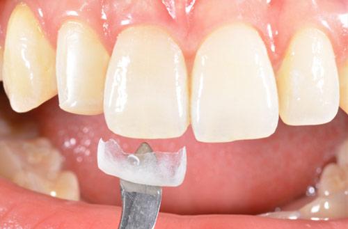 دندانپزشک زیبایی ,دندانپزشکی زیبایی, دندانپزشک, بهترین دندانپزشک زیبایی