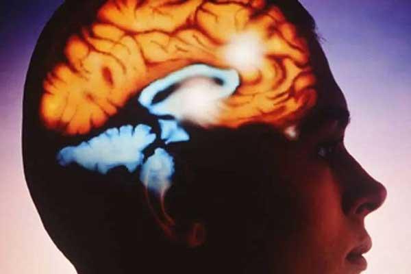 هموراژ درون مغزی