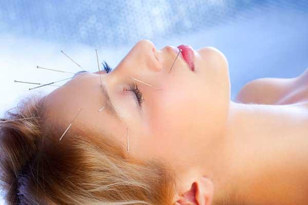 طب سوزنی برای آلرژی