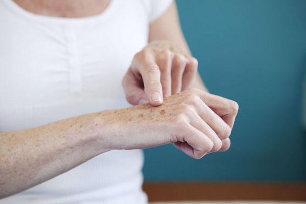 دیابت و بیماری های پوستی