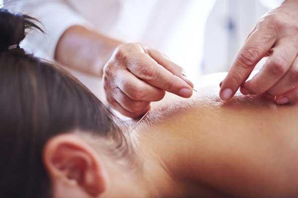 طب سوزنی برای کمر درد