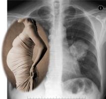 سرطان ریه در بارداری