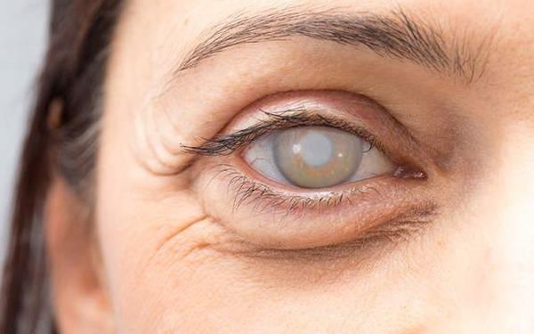 جراحی آب مروارید چشم