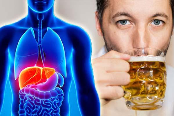 بیماری کبد الکلی