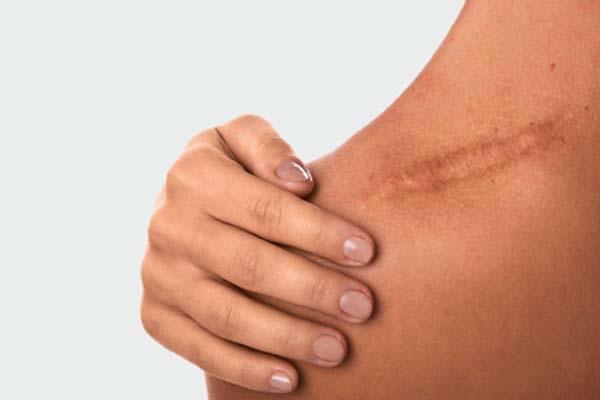 از بین بردن جای اسکار | پاکسازی پوست